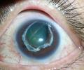 Безплатни прегледи за глаукома в Стара Загора