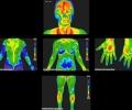Прегледи чрез термовизуална диагностика ще се проведат в Стара Загора от 15 до 19 юни
